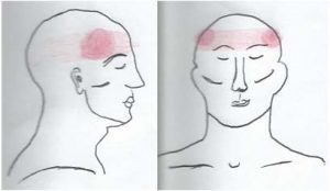 Pain Pattern of a Tension Headache
